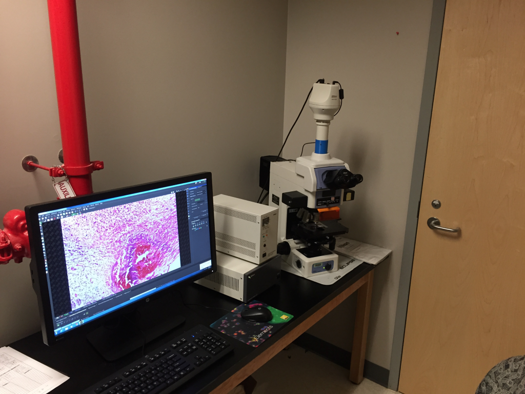 camera attached to PC, imaging sections of tumors